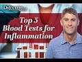 Top 5 Blood Tests for Inflammation
