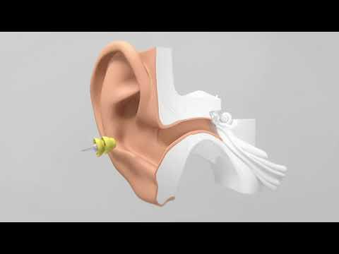 Comment se positionne l'aide auditive Lyric 3 Phonak