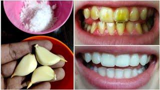تبييض الأسنان في دقيقتين فقط -…