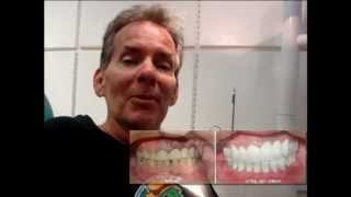 Dental Vacations Mexico Cancun Dentist Thumbnail