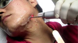 Acne Treatment With Fotona Nd:Yag 1064 nm Laser In Los Angeles,Orange County,San Gabriel Valley