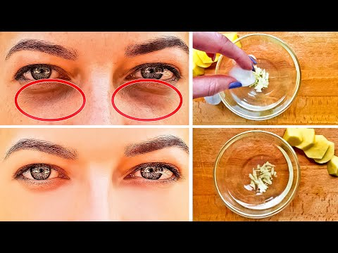 9 Home Remedies to Get Rid of Dark Circles Under Your Eyes
