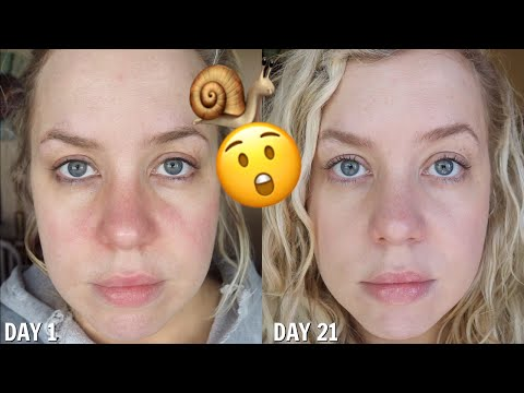 I Used SNAIL Skincare for 21 Days (the results shocked me)