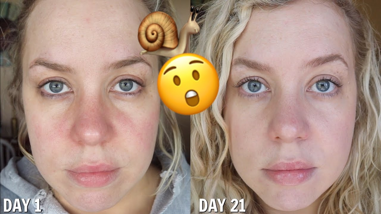 I Used Snail Skincare For 21 Days The Results Shocked Me Youtube