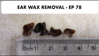 3.5CM EAR WAX REMOVED - EP 78