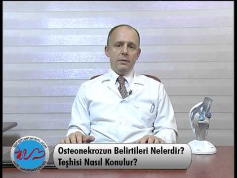 Osteonekroz Belirtileri Nelerdir?
