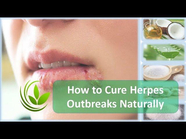 stop herpes outbreaks