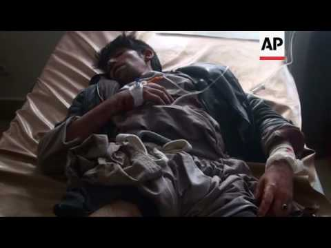 Afghanistan suicide attack victims in hospital