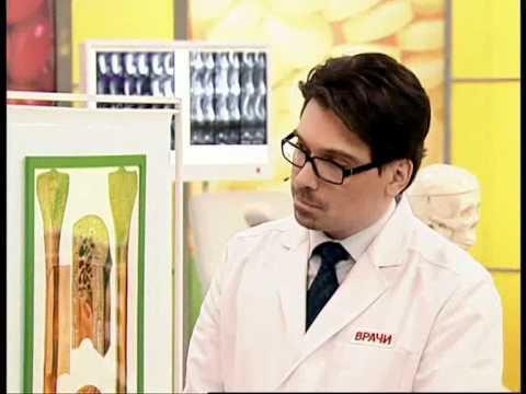 Грыжа пищеводного отверстия диафрагмы (ГПОД) - симптомы