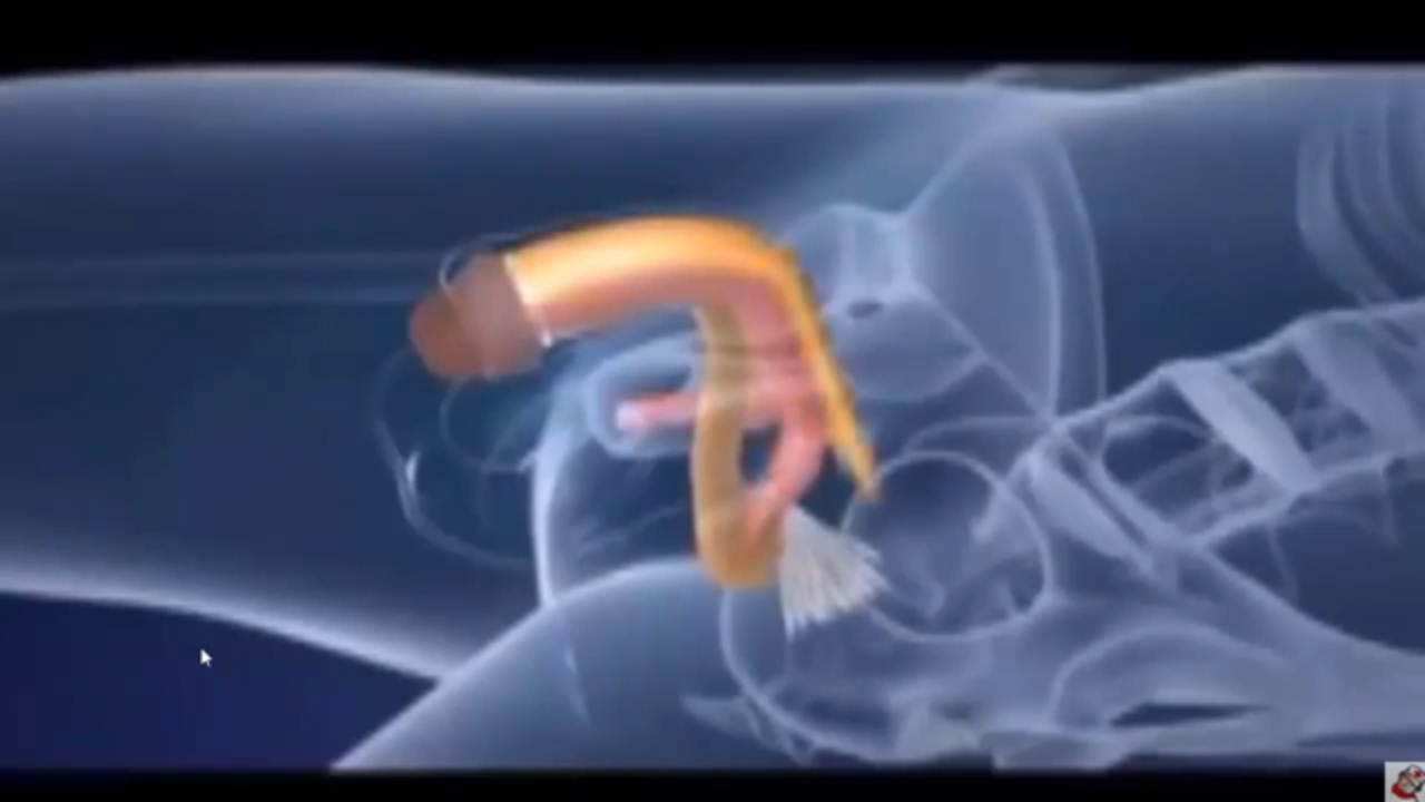 Transgender Surgery How Does Male To Female Work - Youtube-7785