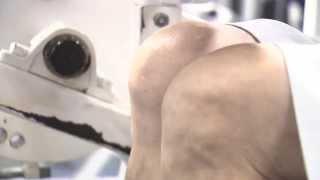 Osteoarthritis & Your Knees