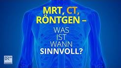 MRT, CT, Röntgen: Was ist wann sinnvoll und wie steht es um die Nebenwirkungen? | BR24