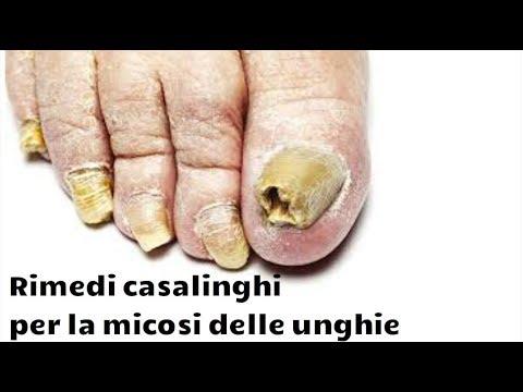 Il fungo di unghie che trattare targhe