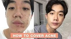 hqdefault - Do Men Wear Makeup To Cover Acne