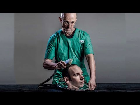 World's First Head Transplant UPDATE