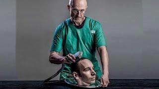 World's First Head Transplant UPDATE