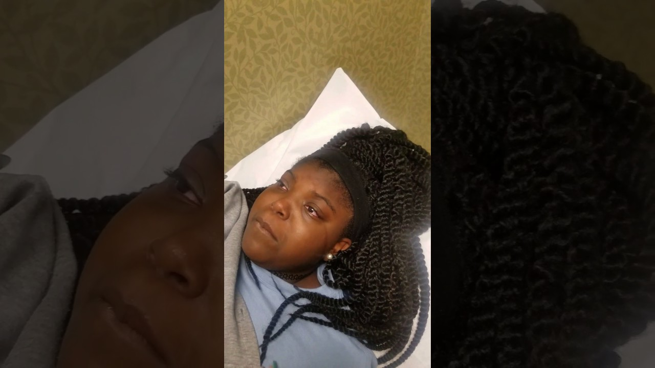 tatyana wisdom teeth removal aftermath youtube