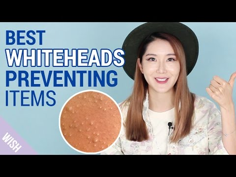 What Causes Whiteheads?   How To Prevent Whiteheads   Wishtrend