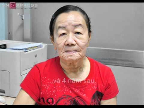 Căn bệnh của cô gái 26 tuổi biến thành bà lão