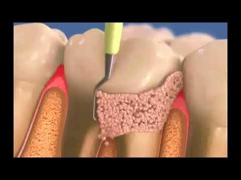 Как избавится от зубного камня?