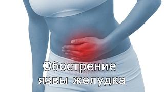Обострение язвы желудка