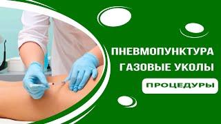 Пневмопунктура - газовые уколы СО2 и О3