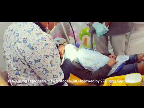 Nitrous Oxide Inhalation Sedation NOIS In Pediatric Dental Practice