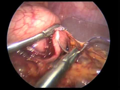 Laparoscopic partial gastrectomy for GIST resection - YouTube