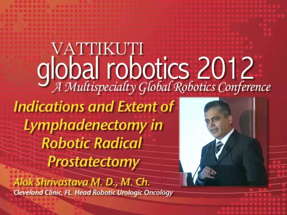 Dr  Alok Shrivastava: Lymphadenectomy in Radical Prostatectomy