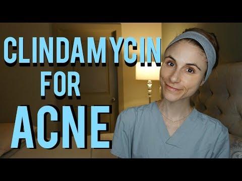 hqdefault - Does Clindoxyl Gel Work Acne
