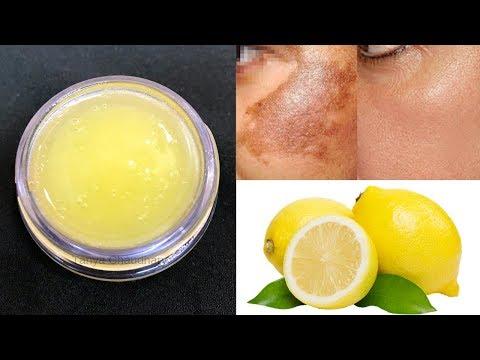 DIY LEMON CREAM | Skin Whitening & Lightening Cream | Remove Dark Spots, Pigmentation & Acne Scars