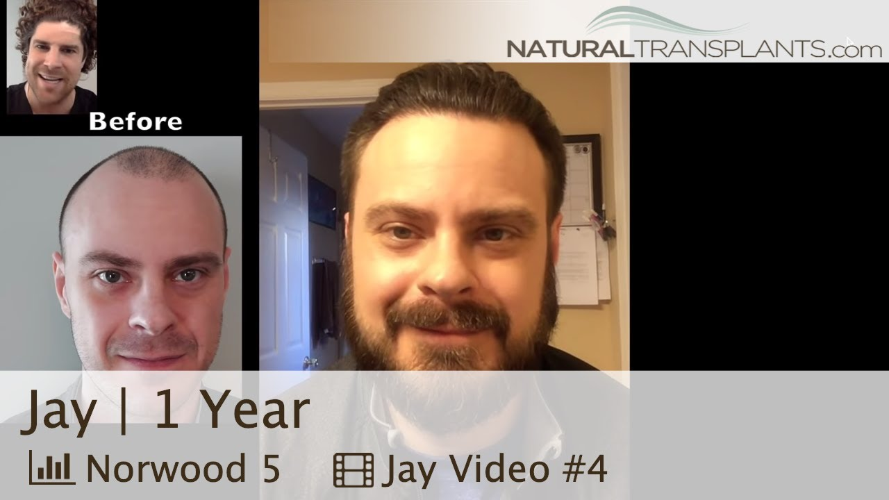 Hair Transplant Before And After 2018 Best Hair Transplant 2018