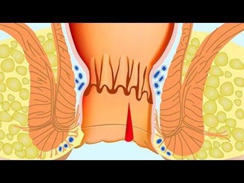 Хирургическое лечение анальной трещины - Как вылечить анальную трещину