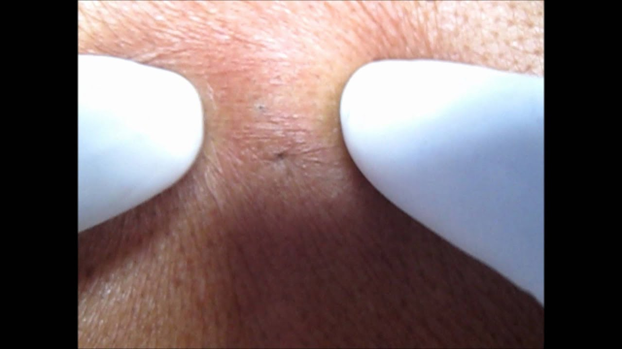 Cutaneous Cysts And Pseudocysts