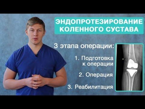 Эндопротезирование коленного сустава. Подготовка, проведение эндопротезирования, реабилитация