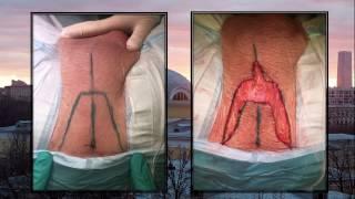 Perineal urethrostomy (Перинеостома / Промежностная уретростомия)