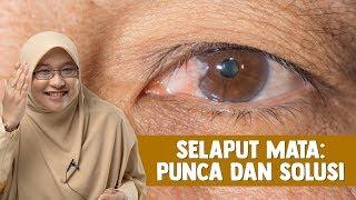 Video ini membahas bintik putih di mata yang merupakan ulkus kornea. Ulkus kornea adalah luka pada k.