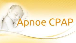medinCNO® ventilation modes: Apnea CPAP