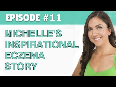 The Eczema Podcast S1 E11: Michelle's Inspirational Eczema Story
