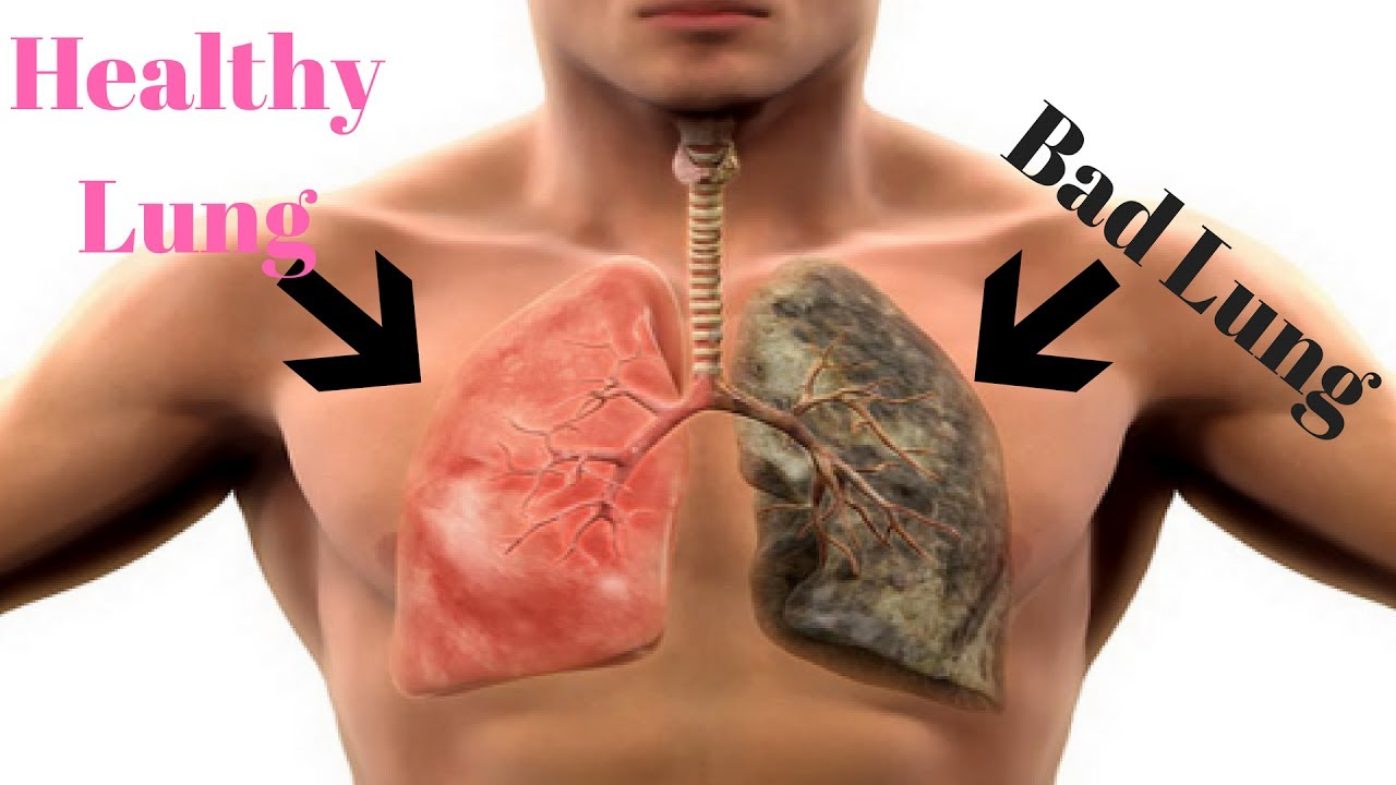 Image result for smoking lungs