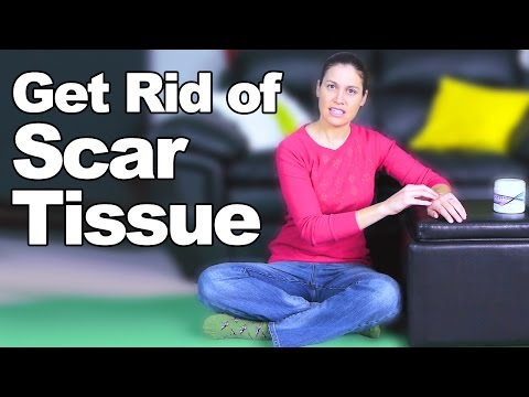 Get Rid of Scar Tissue - Ask Doctor Jo from YouTube · Duration:  3 minutes 8 seconds