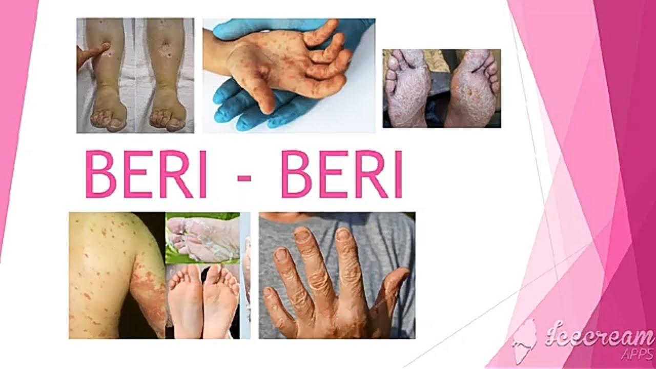 What is beri beri