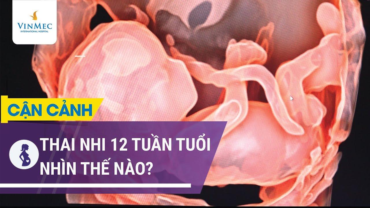 Thai nhi 12 tuần tuổi nhìn rõ nét từ siêu âm thai 4d