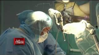 intervention chirurgicale du pouce.wmv