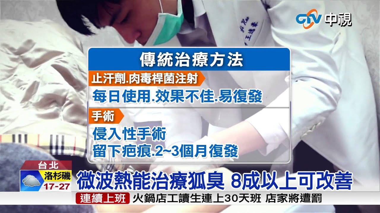 【中視新聞】治狐臭不開刀無疤痕 改善8成以上 20150714 - YouTube