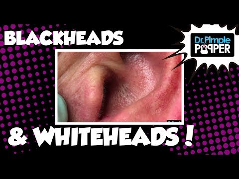 The Good, the Bad, the Great Blackheads & Whiteheads