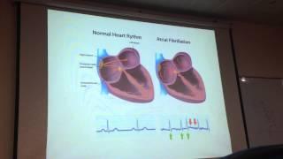 Bài giảng điều trị tăng huyết áp ở bệnh nhân rung nhĩ