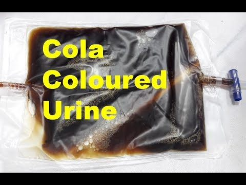 Cola Coloured Urine