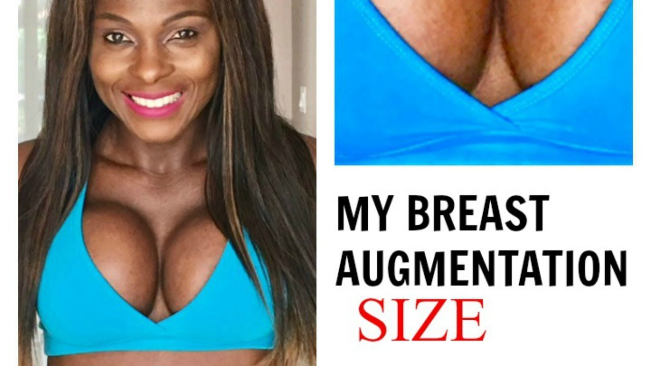 Breast Augmentationboob Job Size, Type Of Implants, And -4855