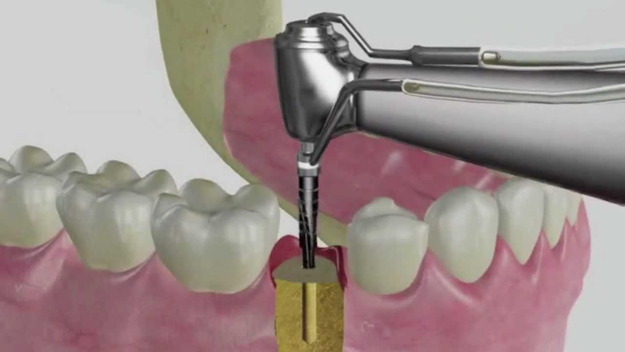 Myriad Dental Implant System Animation Trailer - YouTube